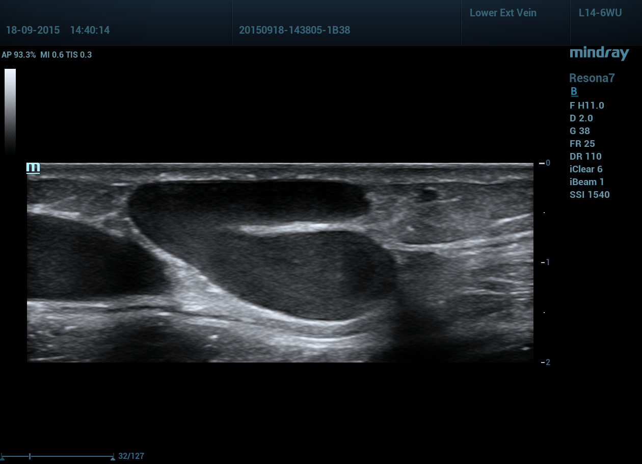 Mindray Resona 6 Medical Picture 2