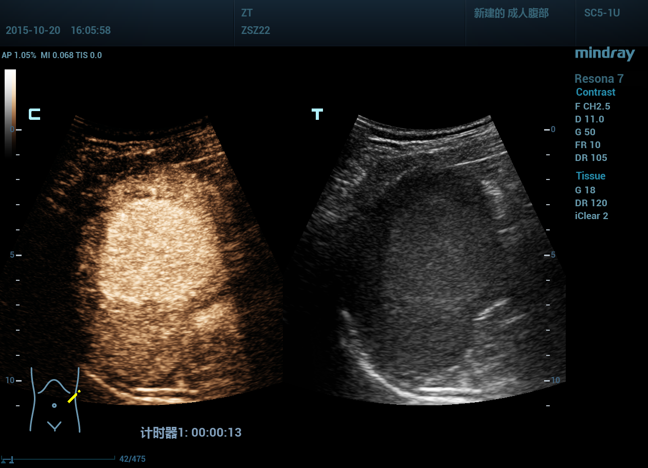 Mindray Resona 6 Medical Picture 9